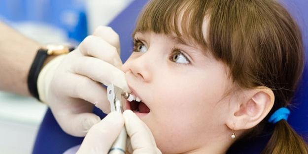 Çocuklarda diş çürüğüne dikkat!