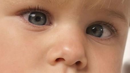 Çocuklarda göz kayması neden olur, göz kayması ameliyatı nasıl yapılır?