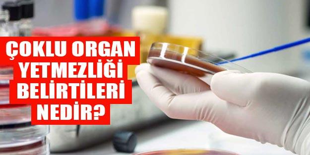 Çoklu organ yetmezliği neden olur? Çoklu organ yetmezliği belirtileri nasıl başlar?