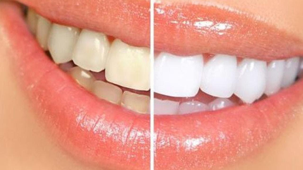 Daha beyaz dişler için bir de bunları deneyin