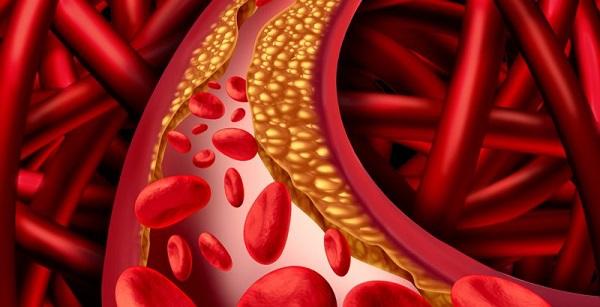 Damar sertliği nedir? Damar sertliği belirtileri nelerdir? Damar sertliği riskleri ve tedavi yöntemleri nelerdir?