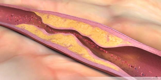 Damar tıkanıklığı nedir? Nasıl tedavi edilir?