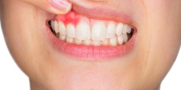 Diş eti çekilmesi neden olur, nasıl geçer? Diş eti çekilmesi tedavisi nasıl yapılır?