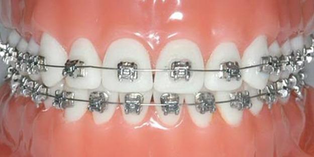 Diş teli temizliğine dikkat!