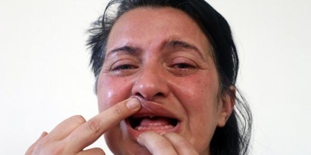 Dişlerini beyazlatmak için gitti, 32 dişinden oldu!