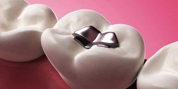 Dişlerinize cıvalı dolgu yaptırmayın