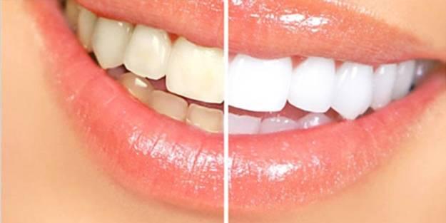 Dişlerinizi beyazlatmak ister misiniz?