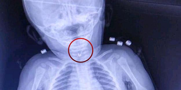 Doktorlar çengelli iğne yutan 7 aylık bebek için seferber oldu