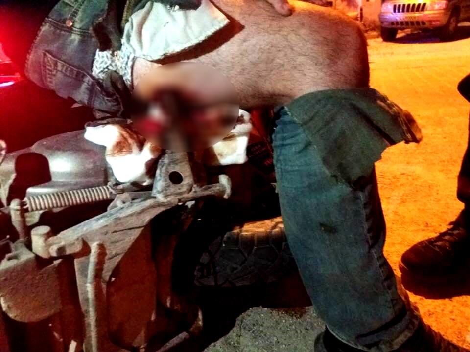 Doktorlarda şok oldu: Motosikletin ayaklığı bacağına saplandı