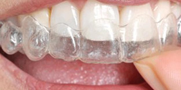 Diş sıkıp gıcırdatanlar dikkat! Uzman isim açıkladı: Eğer yapılmadığı takdirde…