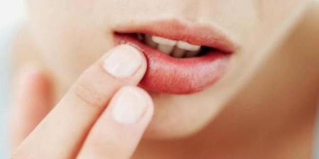Dudak çatlakları nasıl geçer? Kuruyan dudaklara çözüm