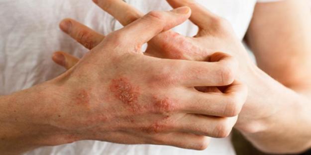 Atopik Dermatit reçete ile ilgili görsel sonucu