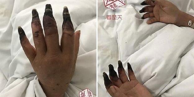 Elindeki ufak yara nedeniyle az kalsın 8 parmağını kaybediyordu