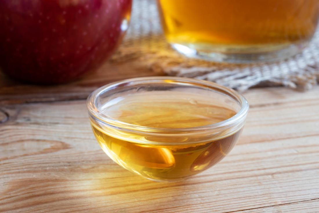 Elma sirkesiyle yüz yıkamanın faydaları