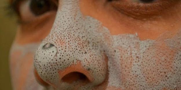 Evde siyah nokta maskesi nasıl yapılır? Doğal siyah nokta maskesi tarifi
