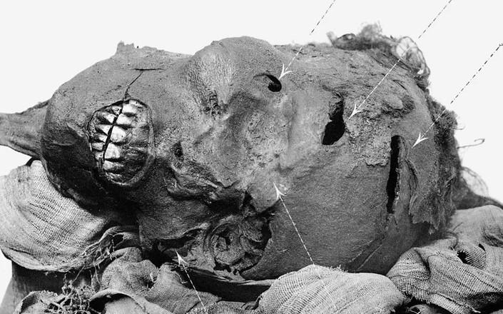 Firavunun tomografisi çekildi! Herkes şok oldu
