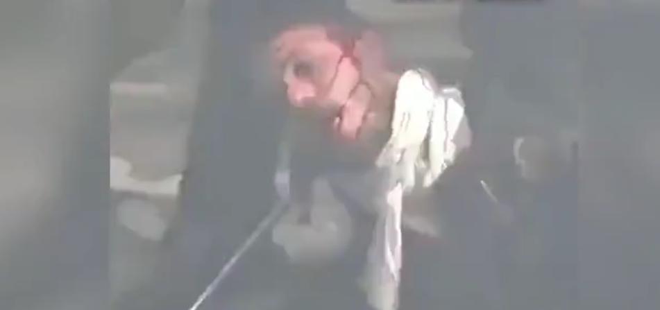 İnsanlıktan utandıran görüntüler! Döve döve bayılttılar