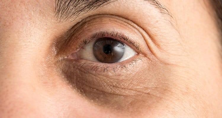 Göz altı morluklarına ne iyi gelir? Göz altı morlukları nasıl geçer? Göz altı morluklarından kurtulmanın yolları