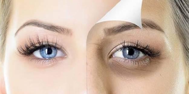 Göz altı torbaları için doğal yöntemler