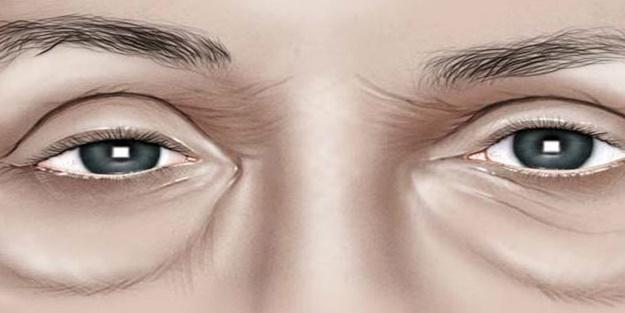 Göz altı torbaları neden olur