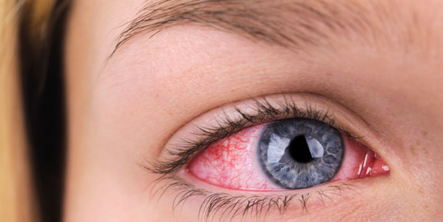 Göz hastalıklarının belirtileri... Kendiliğinden geçer demeyin!