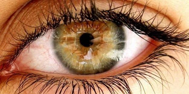 Göz iltihaplanması! Göz şişmesinin belirtileri! Göz şişmesinin tedavisi!