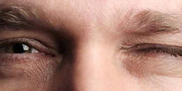 Göz seyirmesi neden olur? Göz seyirmesinde nelere dikkat edilir? Göz seyirmesi neyin habercisi?