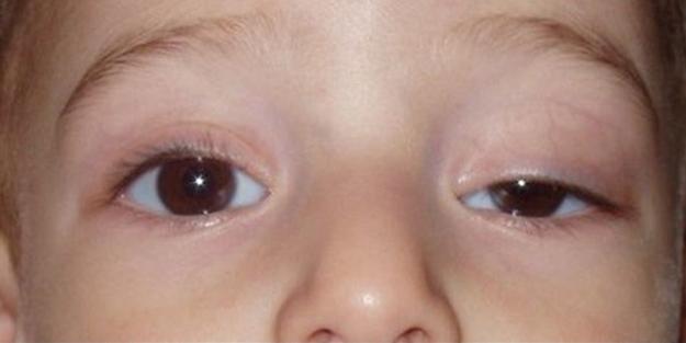 Göz Şişkinliği Nasıl Giderilir
