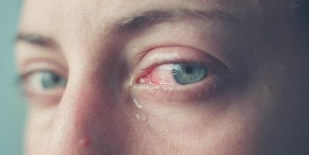 Göz sulanması neden olur? Göz sulanması nasıl geçer?