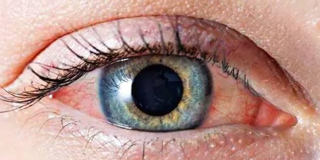 Göz tansiyonu tedavinizi ihmal etmeyin!