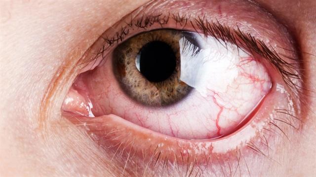 Gözlerinizde kızarıklık varsa ertelemeyin