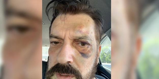 Hakan Bayrakçı'yı kim dövdü? MHP'li o ismi ima etti