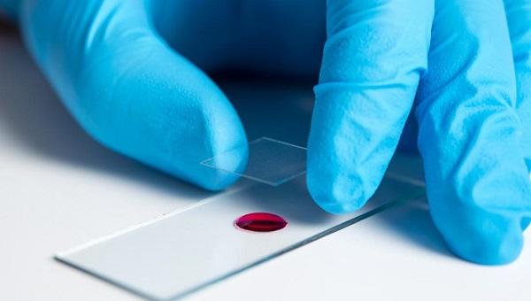 Hangi kan grubu koronavirüsten daha çok etkileniyor?