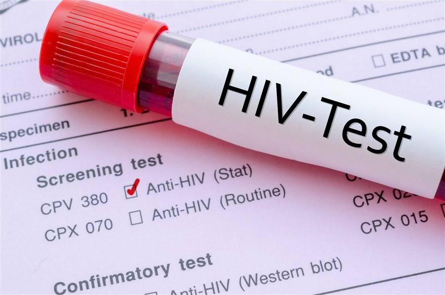 Hiv Testi Kotona