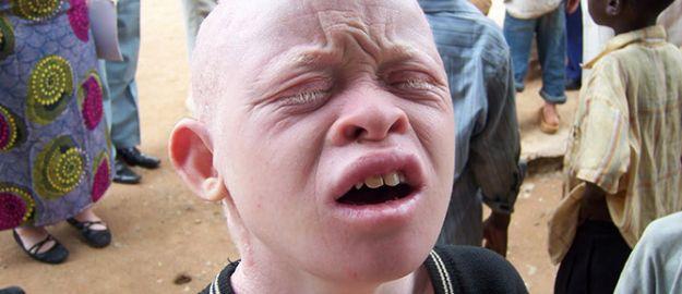İHH, albinoların kamplarına girdi