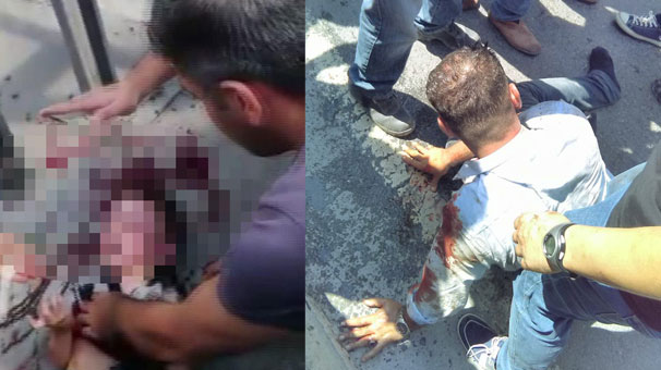 İstanbul Esenyurt'taki dehşet anları: Küçük çocuk beyin kanaması geçirmiş