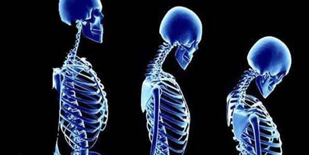 Kadınların ortak derdi: Kemik Erimesi