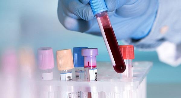 Kan grubu ile koronavirüsün ilgisi var mı?