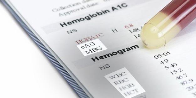 Kan tahlili MCV nedir? Normal WBC değeri kaç olmalı MBG RBC HCT WBC değerleri sorgula