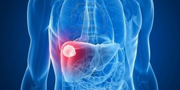 Karaciğer hastalıklarının belirtileri ve önlemler