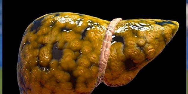 Karaciğer yağlanması nedir, neden olur? Karaciğer yağlanması tedavisi