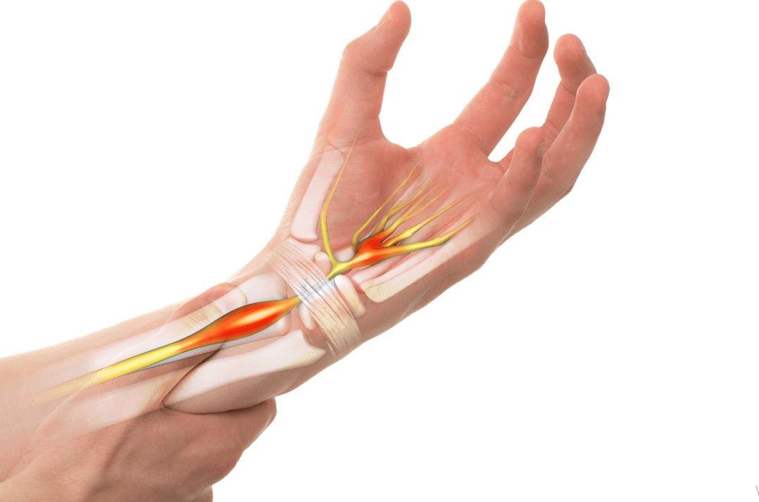 Karpal Tünel Sendromu belirtileri nelerdir? Ellerdeki uyuşma ve his kaybı karpal tünel midir?
