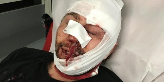 Katil Esed'in zulmünden kaçan Suriyeli gazeteciye Fransız polisinden öldüresiye dayak