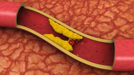 Yüksek Kolesterol