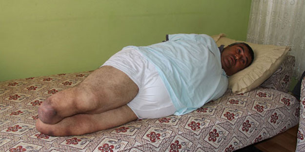 Kolları ve bacakları olmayan emekli askerin haciz isyanı