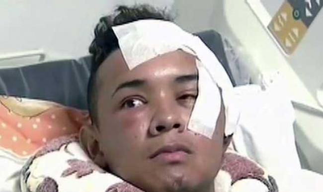 Kolombiya'da gözüne bıçak saplanan adamın beyni delindi