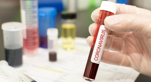 Koronavirüs nedeniyle hac iptal mi edilecek son dakika haberi