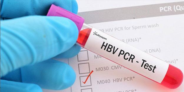 Koronavirüs test sonucu ne kadar sürede çıkıyor? Covid-19 test sonucu kaç güne çıkar?