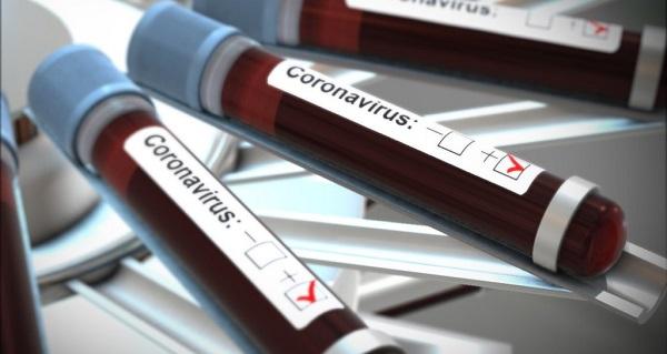 Koronavirüs testi yapan hastaneler hangileri?