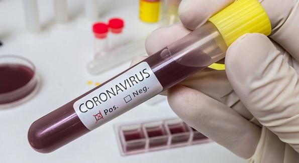 Koronavirüsten kaç kişi öldü?   Coronavirüs son durum 17 Mart 2020